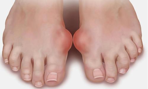 бурсит. шишка на ноге