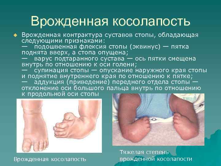 описание эквиноварусной деформации стопы