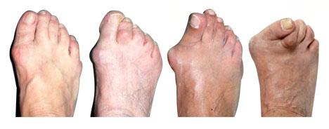 стадии деформации стопы при халюс вальгус