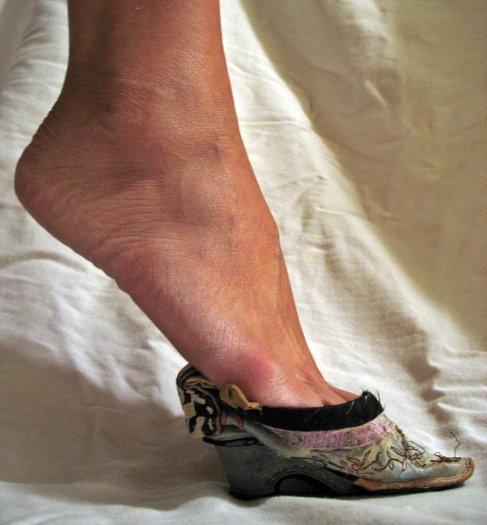 маленькая и узкая обувь, как причина деформация стопы