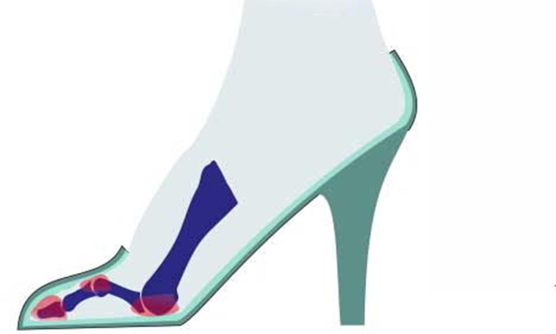искривление и распределение нагрузки при ношении обуви на высоком каблуке