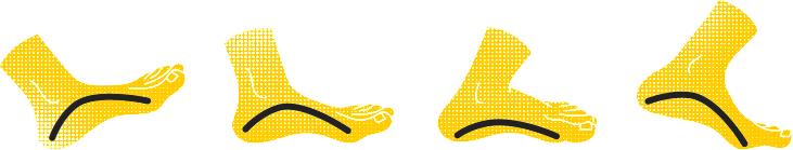 как определить пронацию стопы